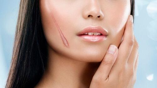 cách trị sẹo khâu 1