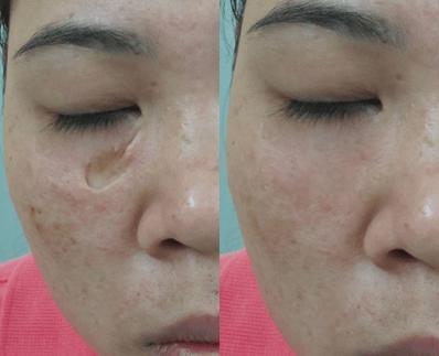 trị sẹo nốt ruồi 3