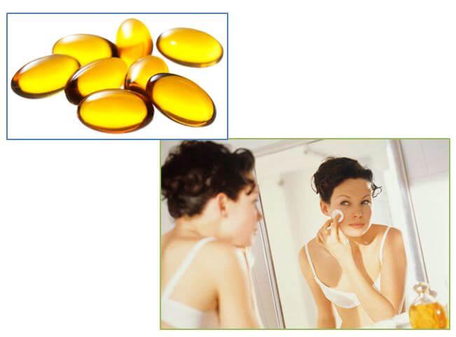 trị sẹo mụn bằng vitamin e 4