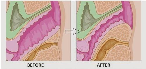 Hình ảnh trước và sau khi thực hiện trẻ hóa âm đạo