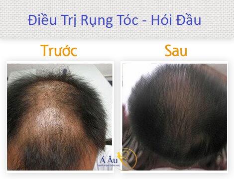 trị rụng tóc hói đầu