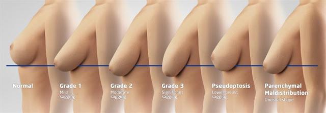 Thế nào là ngực bị chảy xệ