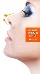 Nâng mũi S-line 1