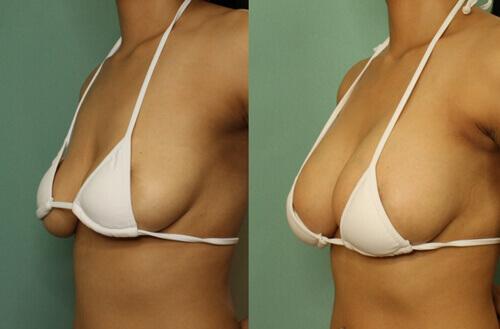 tránh ngực chảy xệ sau sinh