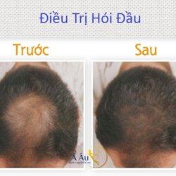 Điều trị hói đầu, trị rụng tóc cho kết quả nhanh chóng tại Á Âu