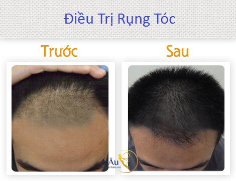 Kết quả điều trị rụng tóc, điều trị hói đầu bằng PRP