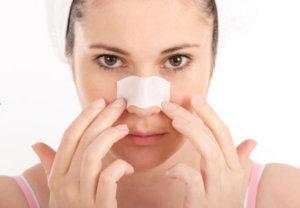 trị sẹo ở mũi 1