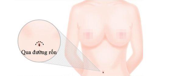 kinh nghiệm nâng ngực webtretho