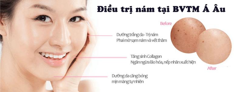 trị nám sâu trong da