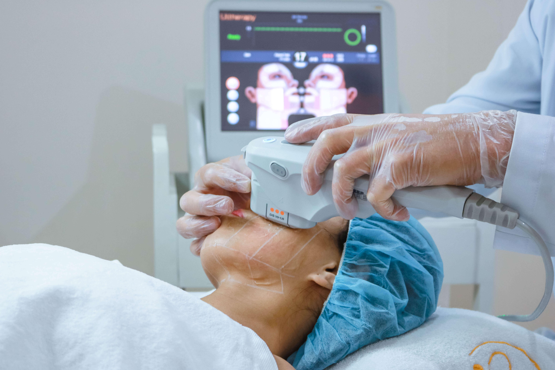 công nghệ Ultherapy giá bao nhiêu
