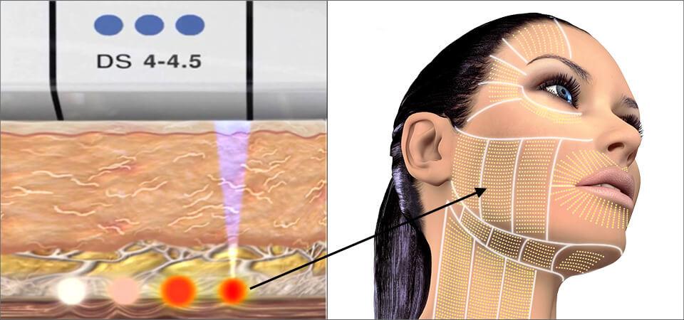 Xóa nọng cằm hiệu quả cùng công nghệ Ultherapy