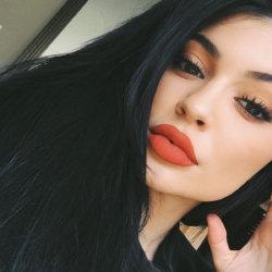 Bơm môi ở đâu đẹp và an toàn?
