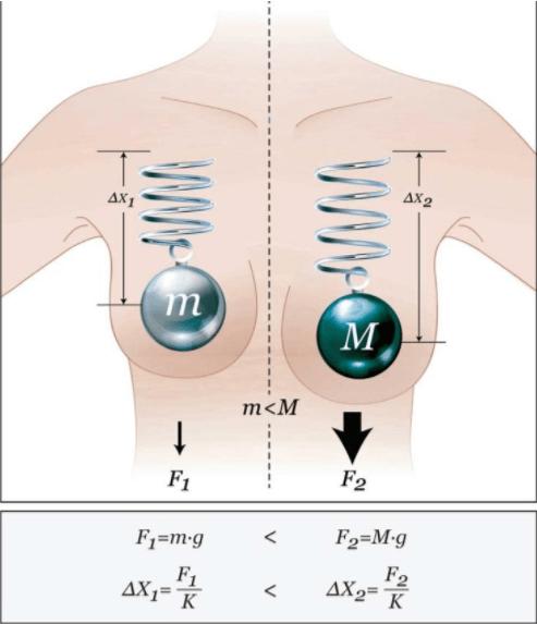 Hiệu quả của túi nâng ngực b-lite