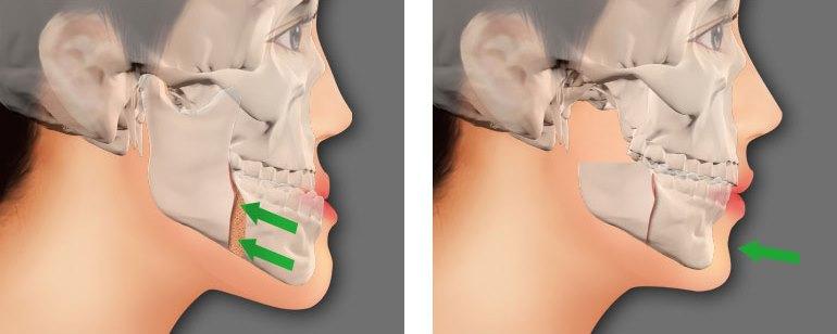 Phẫu thuật chỉnh hàm hô móm