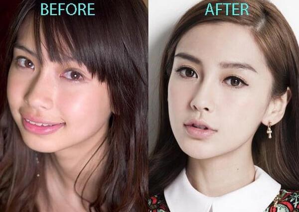 Phẫu thuật môi dày thành mỏng
