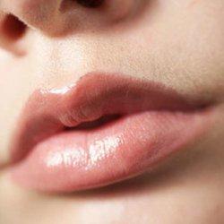 tiêm filler môi bị sưng