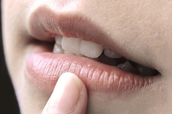 Khoé miệng bị thâm