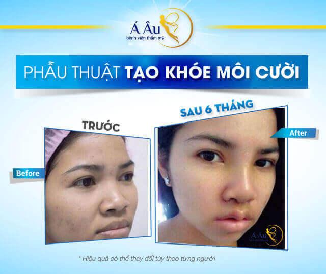 Phẫu thuật môi cười bao nhiêu tiền