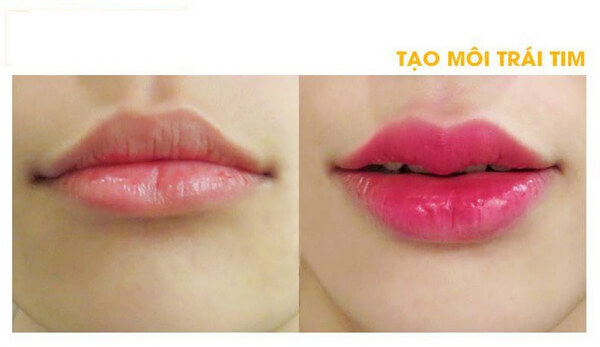 Các kiểu môi đẹp