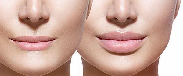 Những lưu ý khi tiêm filler môi