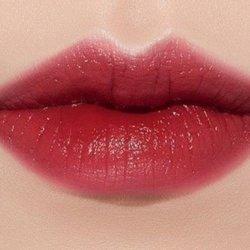 Khâu môi trái tim