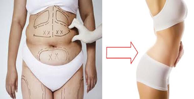 Trước và sau khi hút mỡ bụng
