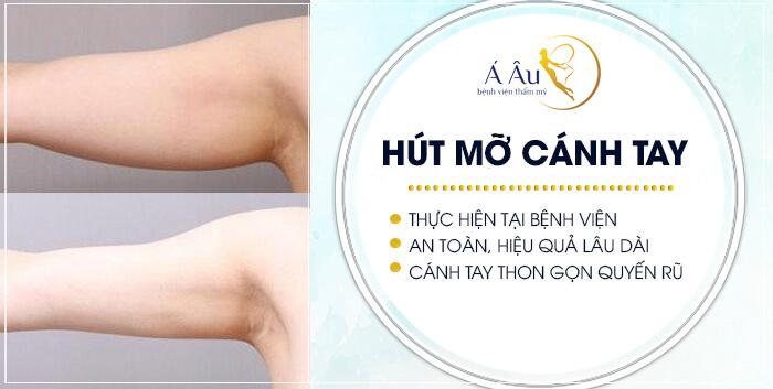Hút mỡ bắp tay phải được thực hiện tại bệnh viện