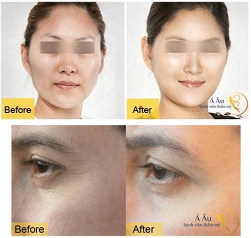 Hình ảnh sau khi cấy mỡ mặt