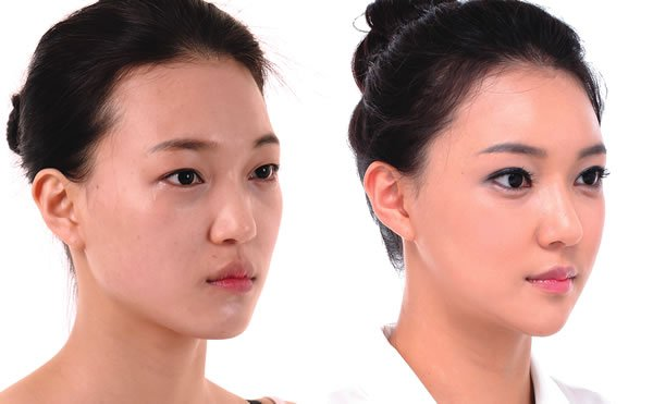 Cấy mỡ giúp gương mặt trẻ hơn