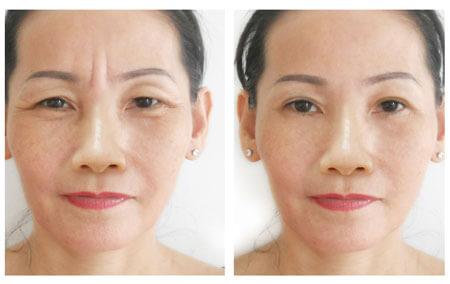 Trẻ hóa gương mặt rất tốt nhờ cấy mỡ