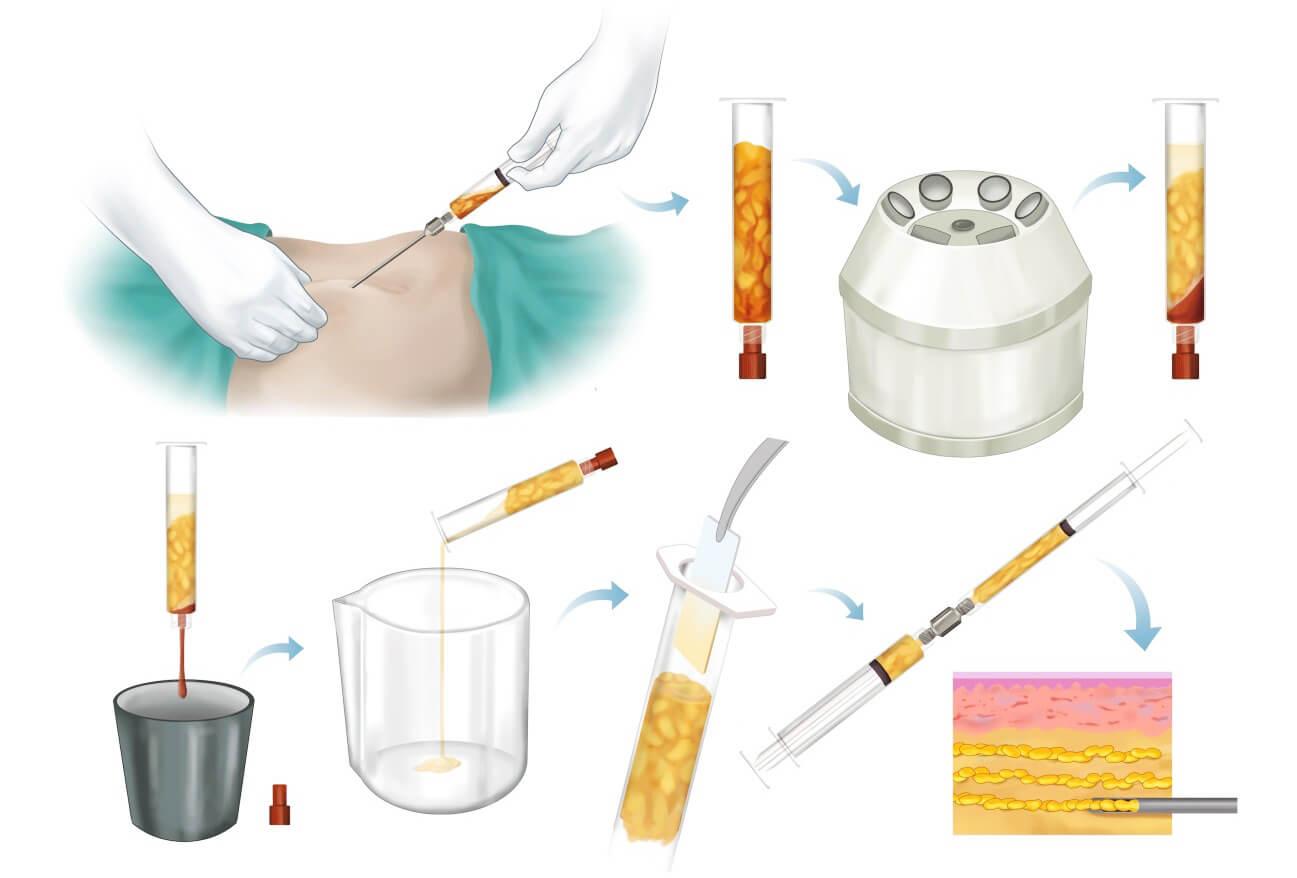 Quy trình chiết tách tế bào mỡ bằng công nghệ hiện đại