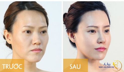 Trước và sau khi cấy mỡ
