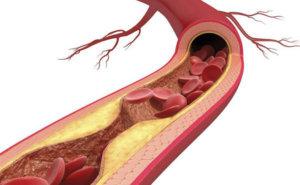 Mỡ trong máu ảnh hưởng tiêu cực đến sức khỏe