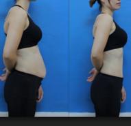 Giảm tới 20cm vòng bụng chỉ sau 1 lần điều trị