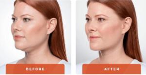 Loại bỏ mỡ thừa cho khuôn mặt V-line