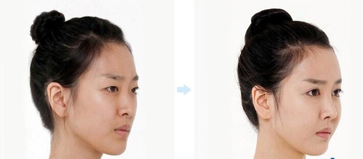 Gương mặt trẻ trung hơn sau khi cấy mỡ má