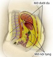 Những vị trí mỡ thừa trong cơ thể
