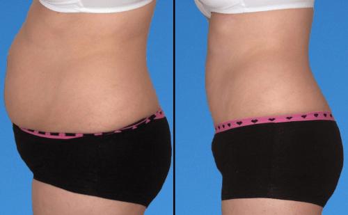 Hút mỡ bụng mang lại kết quả nhanh chóng và tối ưu hơn