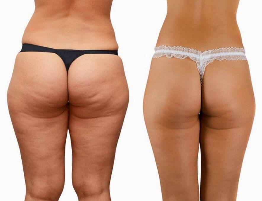 Hút mỡ mông có quy trình thực hiện 5 bước đơn giản
