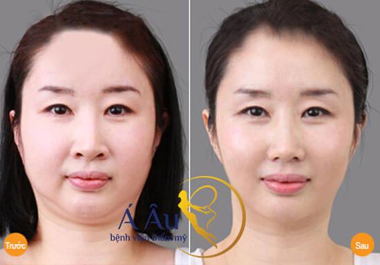 Hình ảnh trước và sau khi hút mỡ nọng cằm