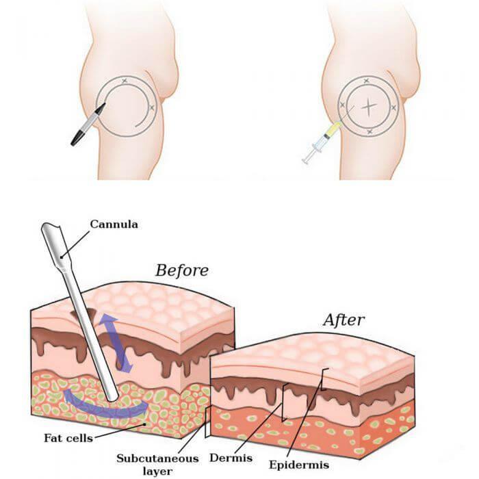 Hút mỡ đùi nội soi không phẫu thuật