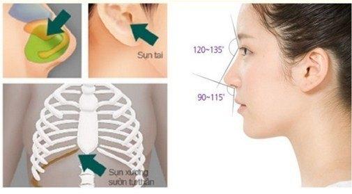 nâng mũi S-line 4D
