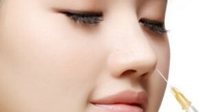 Nâng mũi bằng chất làm đầy
