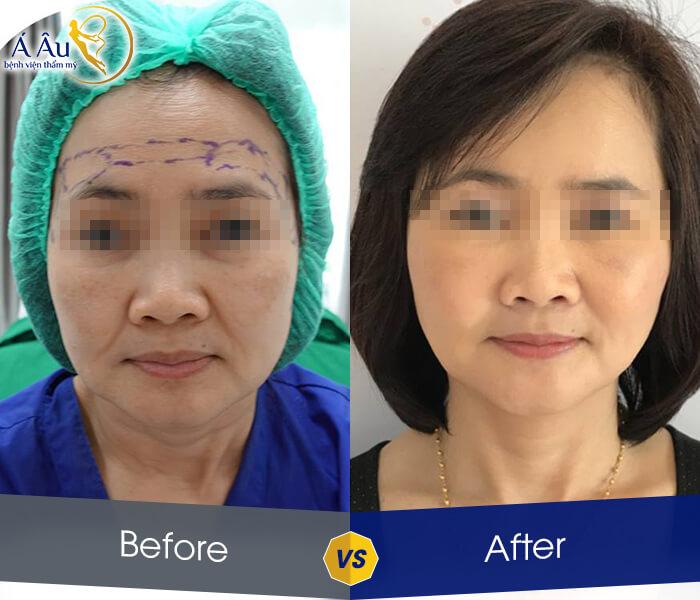 Kết quả trẻ hóa sau khi căng da chỉ vàng nano mặt và cổ