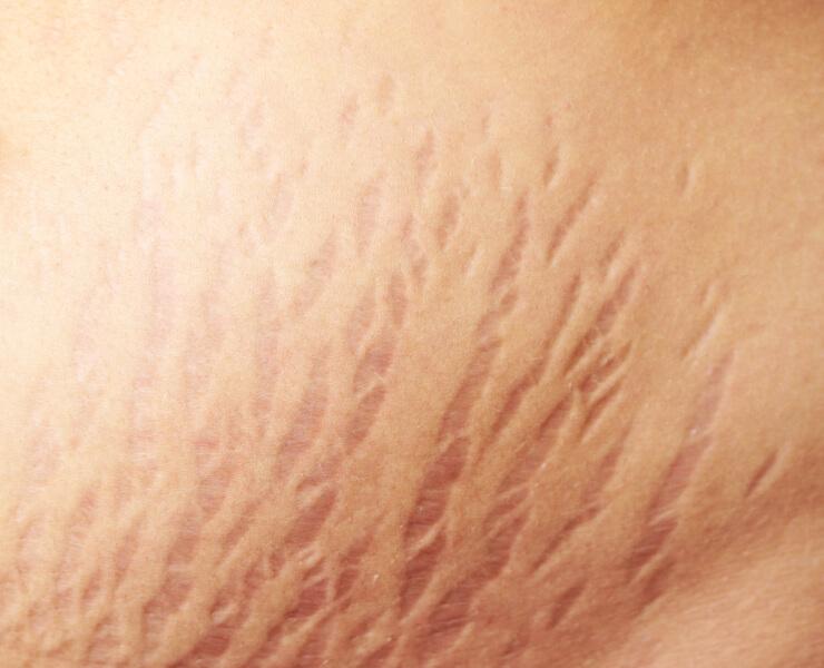 Điều trị rạn da hiệu quả với bộ đôi Laser & PRP
