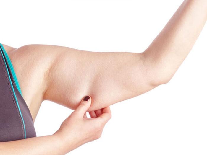 Mỡ bắp tay làm cho thân hình cuồn cuộn